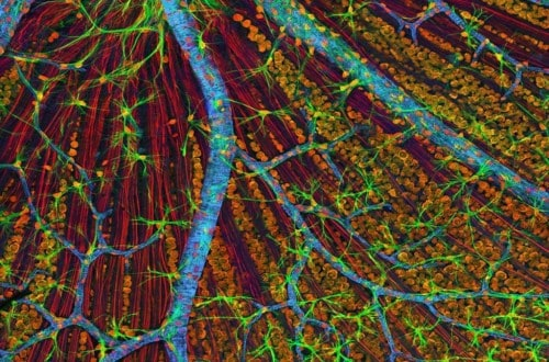 10 Microscopic Images With Massive Results