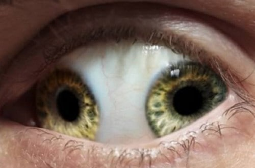 10 Of The Most Bizarre Eyes In The World